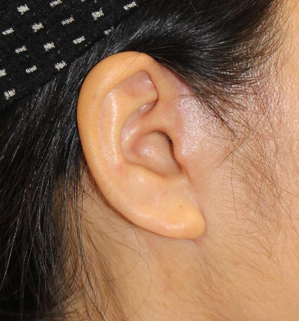 SMASリフト、FAMI法、スプリングスレッドリフト、ベイザー頬顎脂肪吸引、法令線剥離術_d0092965_03565837.jpg