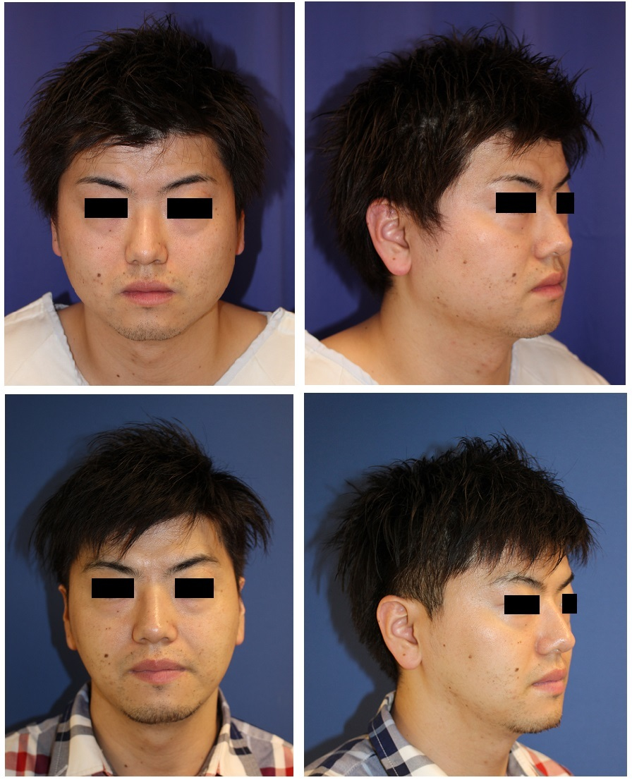 下顎骨 エラ骨切(下顎角骨切り) 外板骨外し_d0092965_00472523.jpg