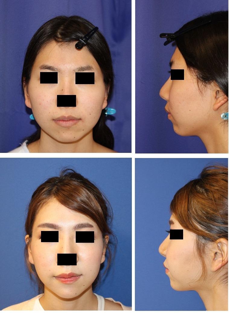 頬骨v字骨切術、 顎先骨切前方移動術、エラ骨骨切術_d0092965_01492357.jpg