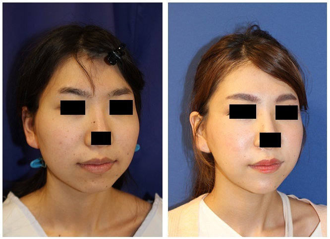 頬骨v字骨切術、 顎先骨切前方移動術、エラ骨骨切術_d0092965_01493451.jpg