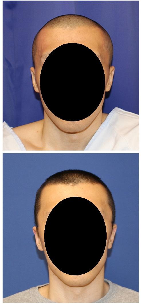 側頭部頭蓋削り、他院後頭部アパタイト術後修正_d0092965_0255998.jpg