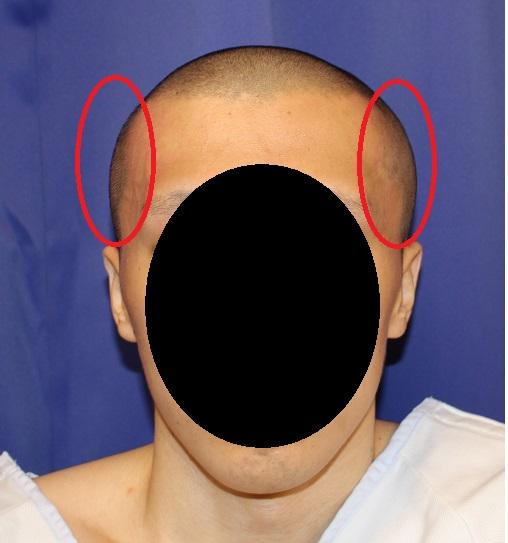 側頭部頭蓋削り、他院後頭部アパタイト術後修正_d0092965_0265827.jpg