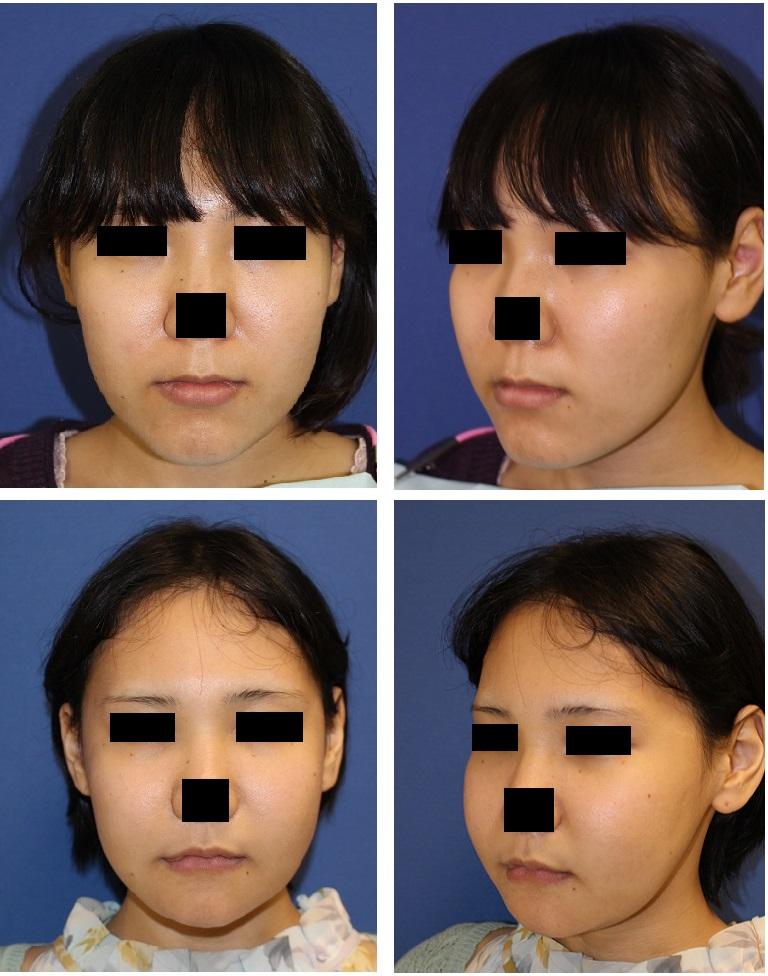 中顔面短縮術(LeFortⅠ型骨切術、SSRO),下顎下縁骨切術、頬骨ブーメラン骨切術、顎先骨切前方移動術_d0092965_4472445.jpg