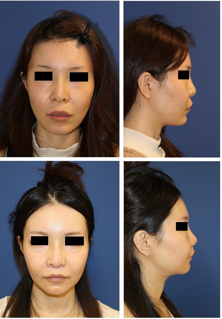 中顔面短縮術(LeFortⅠ型骨切術,SSRO)、他院顎プロテーゼ抜去、顎先骨切前方移動術_d0092965_2241447.jpg