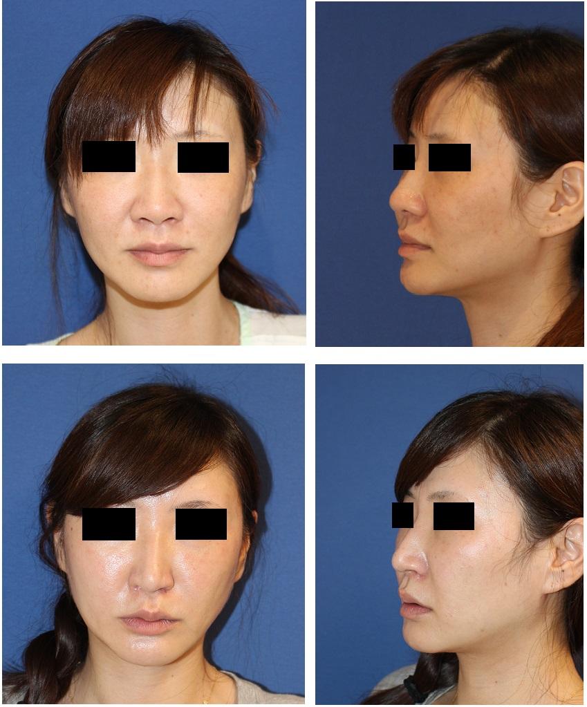 フラップ法小鼻縮小術、鼻尖縮小術、鼻尖部軟骨および婦人科軟部組織移植,その他_d0092965_11198.jpg