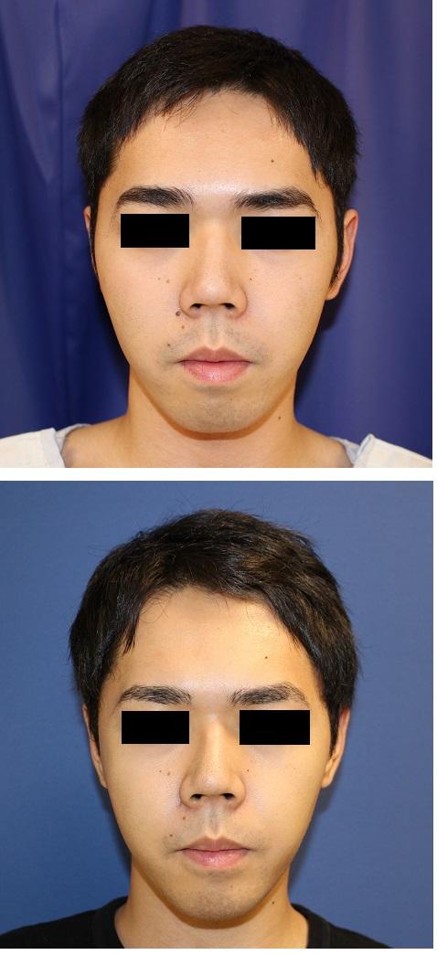 右頬骨縮小術、 右鼻根縮小術_d0092965_3351246.jpg