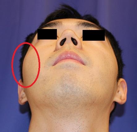 右頬骨縮小術、 右鼻根縮小術_d0092965_346177.jpg