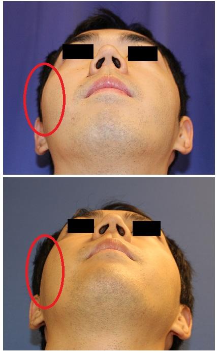 右頬骨縮小術、 右鼻根縮小術_d0092965_3465466.jpg