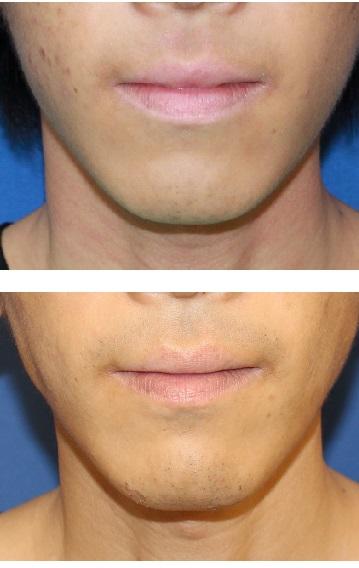 下口唇縮小術  術後約6年_d0092965_45833.jpg