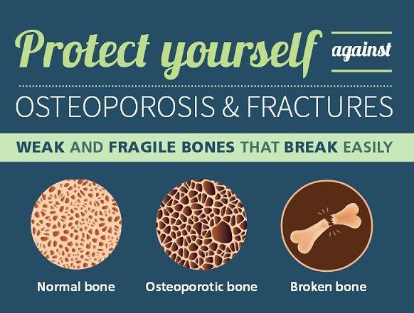 骨粗しょう症と歯科(1)_e0279107_15510882.jpg