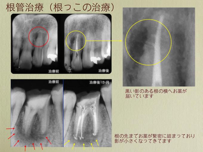 根の治療 広島効果_a0140882_10122502.jpg