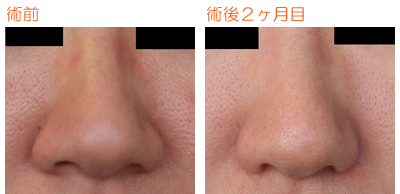 小鼻縮小 術後2ヶ月目_c0193771_13202624.jpg