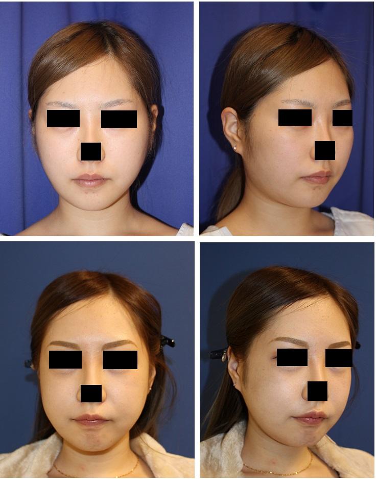 頬骨V字骨切術 、 エラ骨骨切術 術後約半年_d0092965_584344.jpg