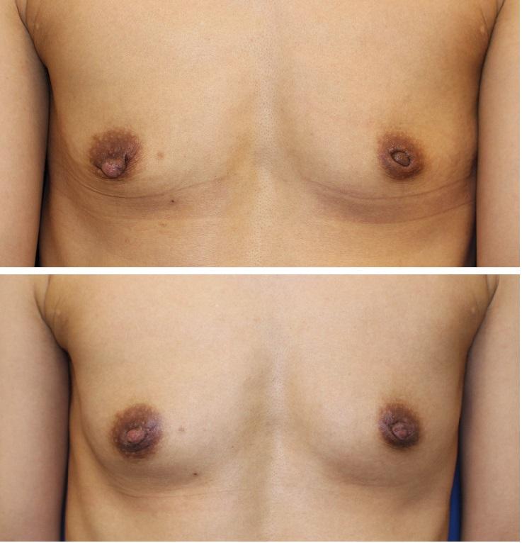 乳頭縮小形成術、左陥没乳頭修正術、モントゴメリー腺除去術_d0092965_2481449.jpg