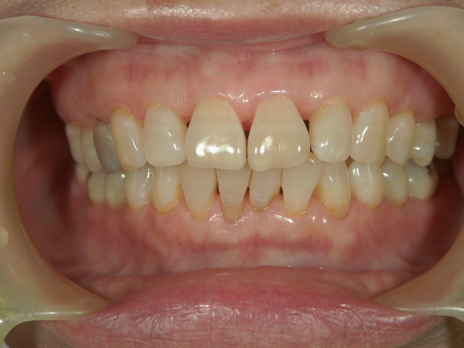 遺伝だけでは歯は悪くはならない、という事・・・。予防歯科再考。_b0119466_00163929.jpg