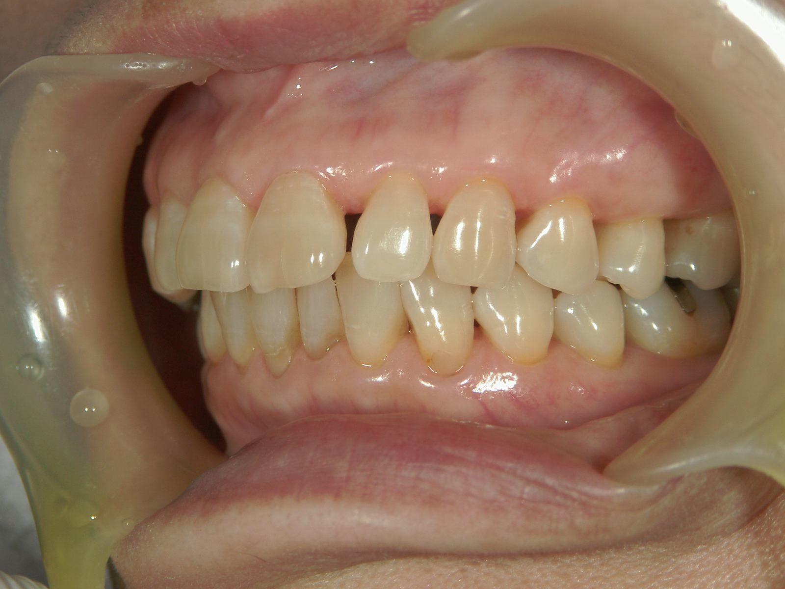 遺伝だけでは歯は悪くはならない、という事・・・。予防歯科再考。_b0119466_01281172.jpg