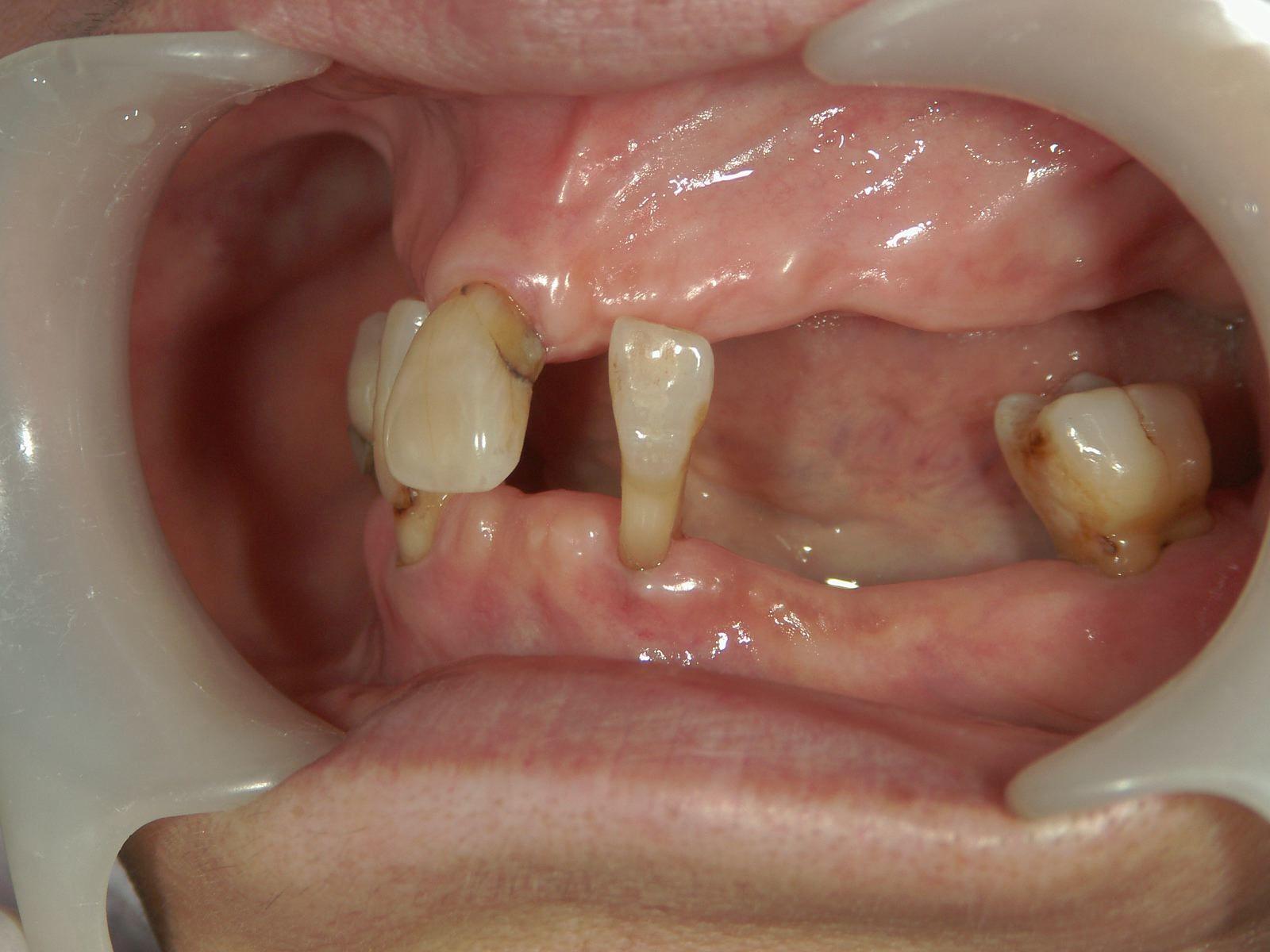 遺伝だけでは歯は悪くはならない、という事・・・。予防歯科再考。_b0119466_01282658.jpg