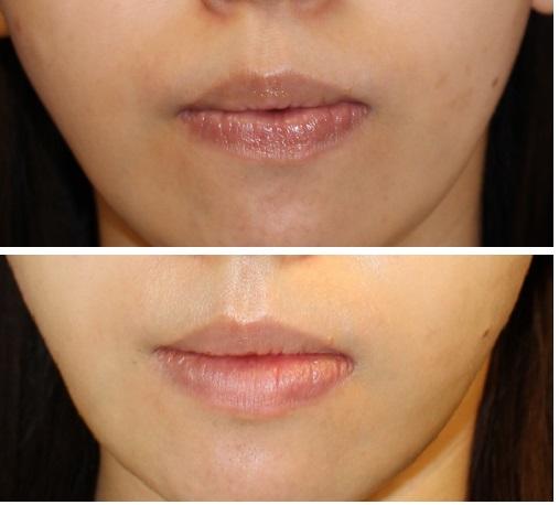 下口唇増大術 術後約半年再診_d0092965_2533784.jpg