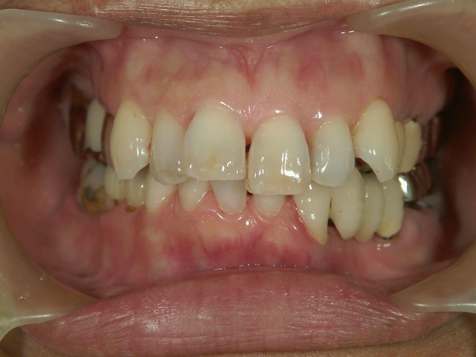 22年間変わらない!年を取ったら歯が悪くなる訳ではない、という事。予防歯科再考・2_b0119466_00032450.jpg