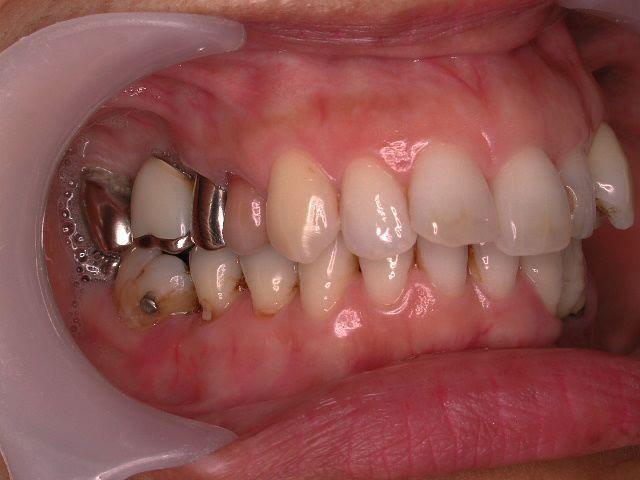 22年間変わらない!年を取ったら歯が悪くなる訳ではない、という事。予防歯科再考・2_b0119466_01502677.jpg