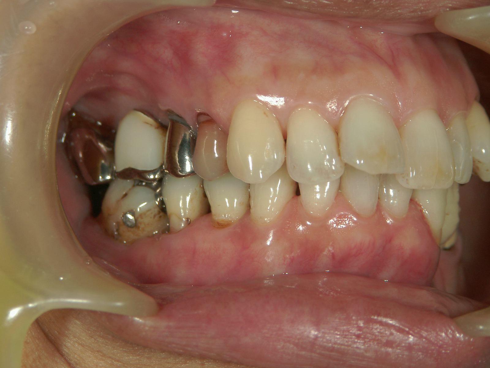 22年間変わらない!年を取ったら歯が悪くなる訳ではない、という事。予防歯科再考・2_b0119466_01504537.jpg