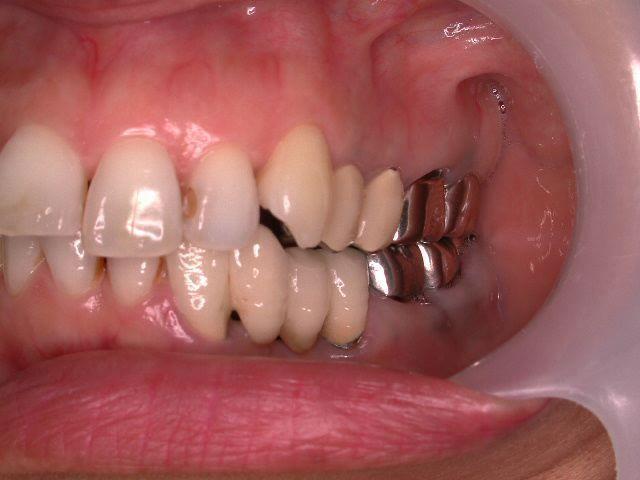 22年間変わらない!年を取ったら歯が悪くなる訳ではない、という事。予防歯科再考・2_b0119466_01511348.jpg