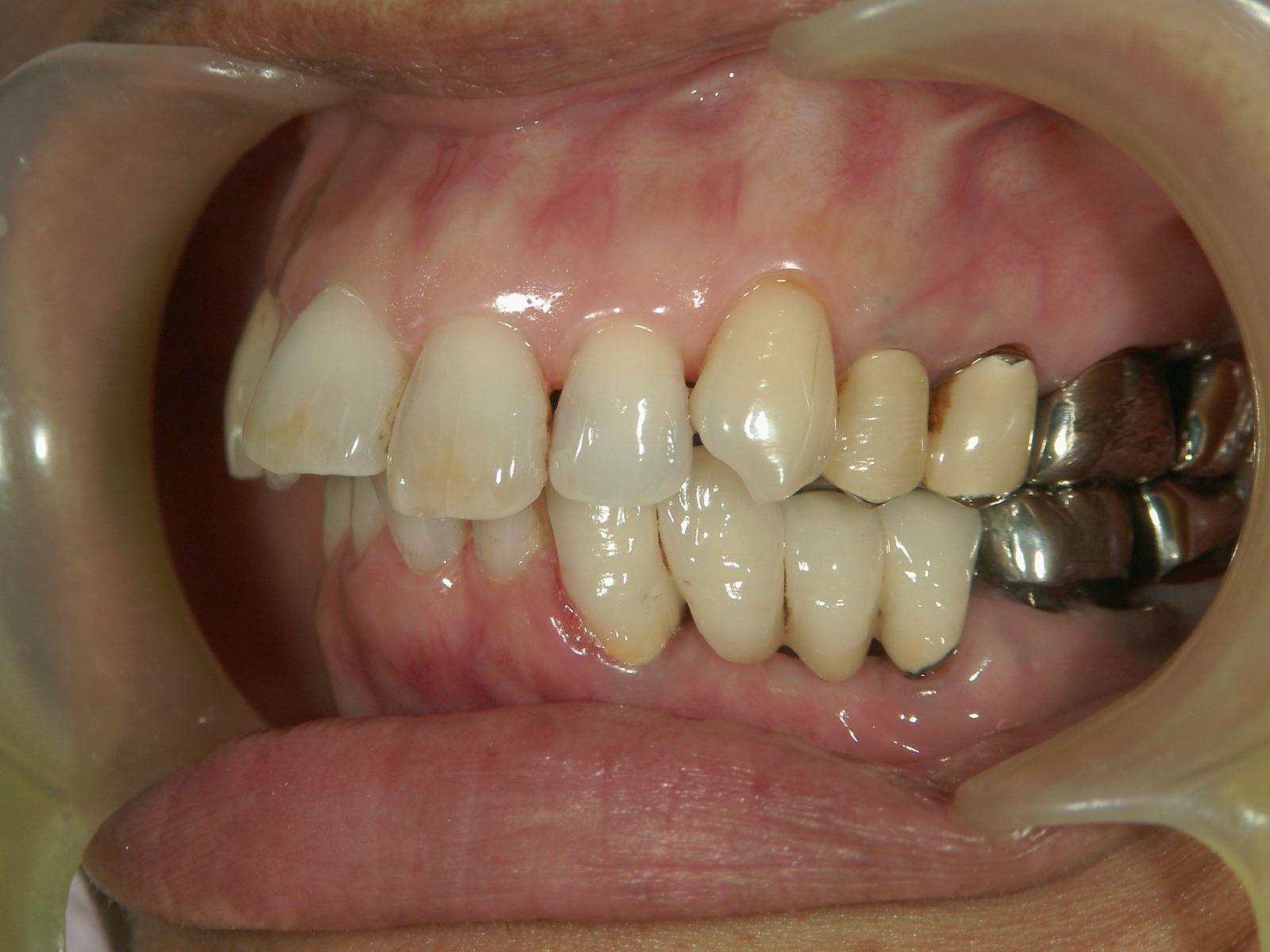 22年間変わらない!年を取ったら歯が悪くなる訳ではない、という事。予防歯科再考・2_b0119466_01512862.jpg