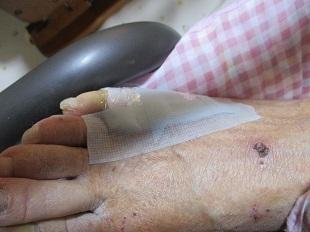 傷の手当_b0320131_16424505.jpg