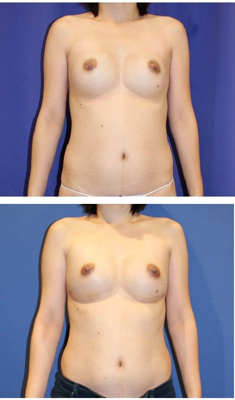 人工乳腺抜去 と同時に 脂肪移植豊胸 による 豊胸術  最終施術より約半年後_d0092965_0304339.jpg
