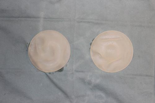 人工乳腺抜去 と同時に 脂肪移植豊胸 による 豊胸術  最終施術より約半年後_d0092965_0312039.jpg