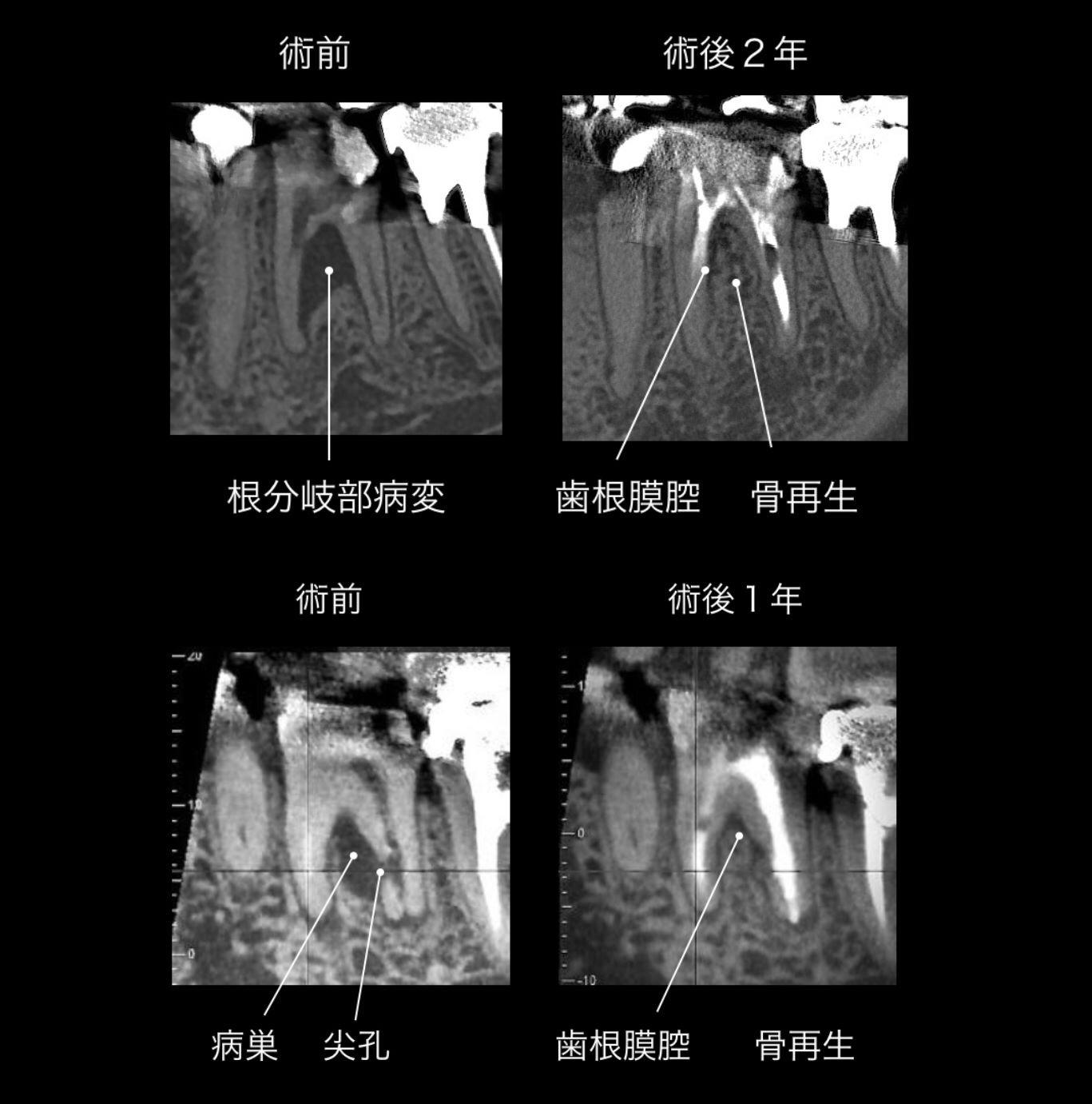 抜かずに残す。今現在の最先端の手法に基づく歯科治療_e0004468_21233749.jpg