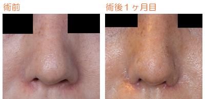 小鼻縮小 術後1ヶ月目_c0193771_955056.jpg