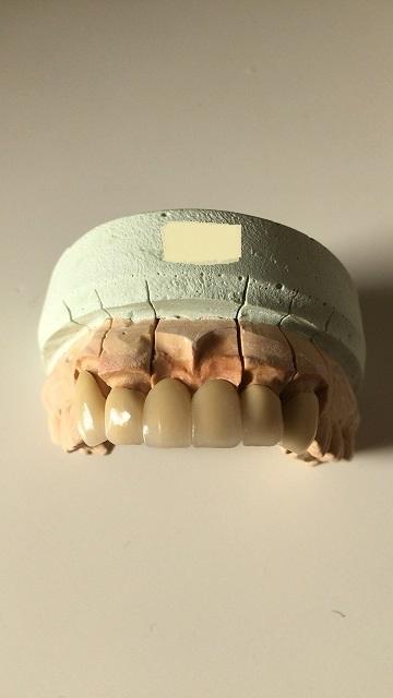審美歯科・セラミックブリッジ歯_b0184294_18413690.jpg