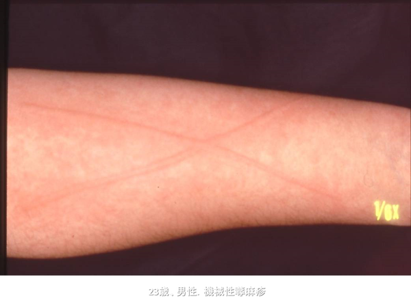 疲れ ストレス 蕁 原因 麻疹