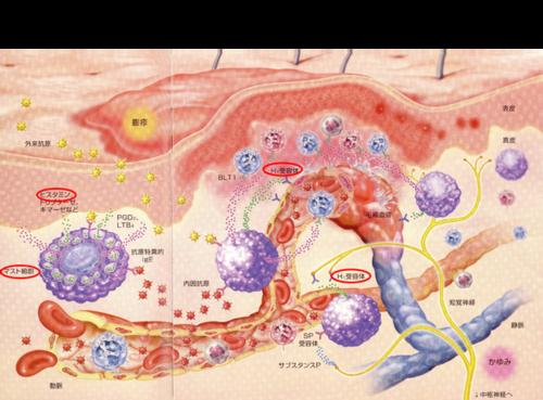 2017年1月教室 『蕁麻疹について』_c0219616_15495048.png