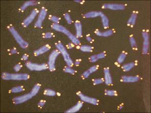 テロメアは細胞分裂の回数券_b0084241_21194661.png