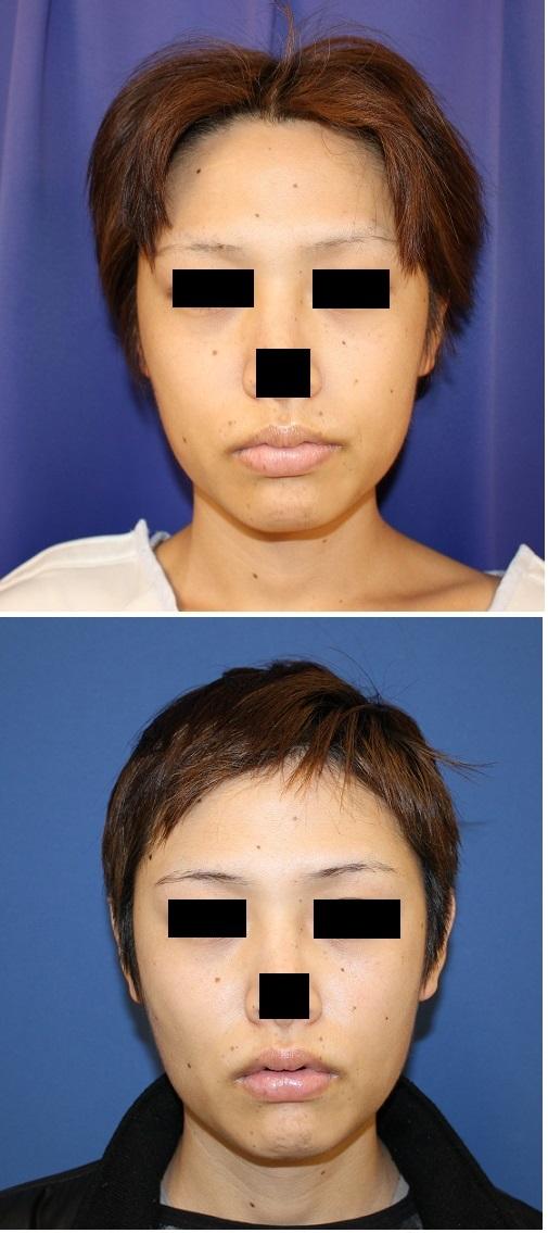 バッカルファット摘出術、 頬 アキュスカルプレーザー  術後約6週間_d0092965_1344340.jpg