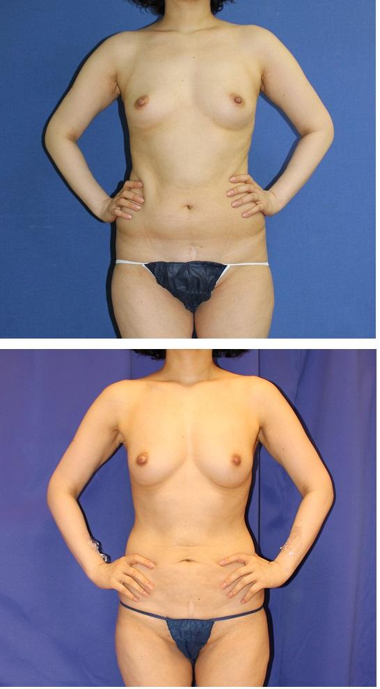 脂肪移植豊胸 1年に2回うけた後 術後3年再診 _d0092965_23191280.jpg