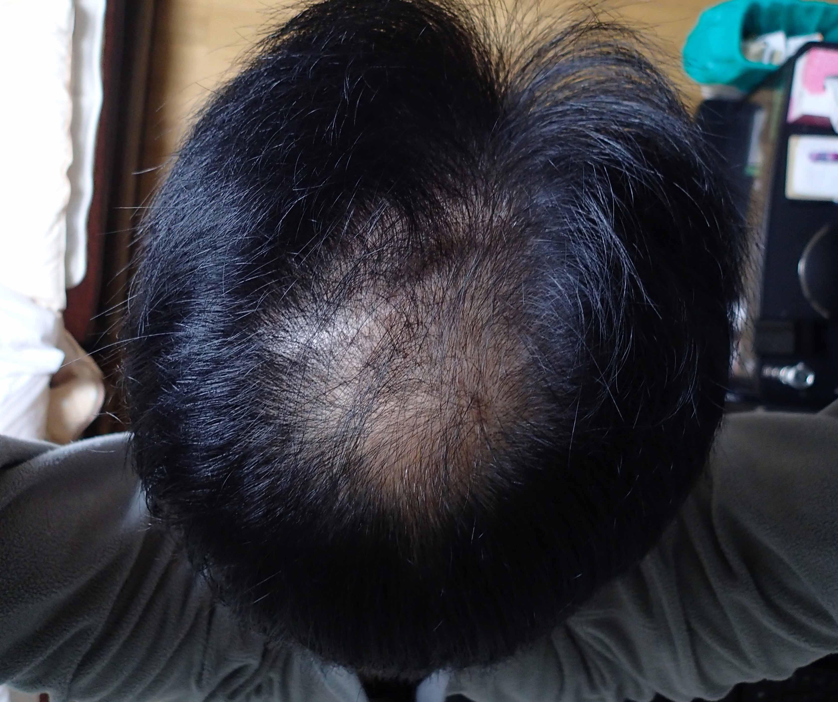 育毛剤3ヶ月使用_a0026295_17252451.jpg