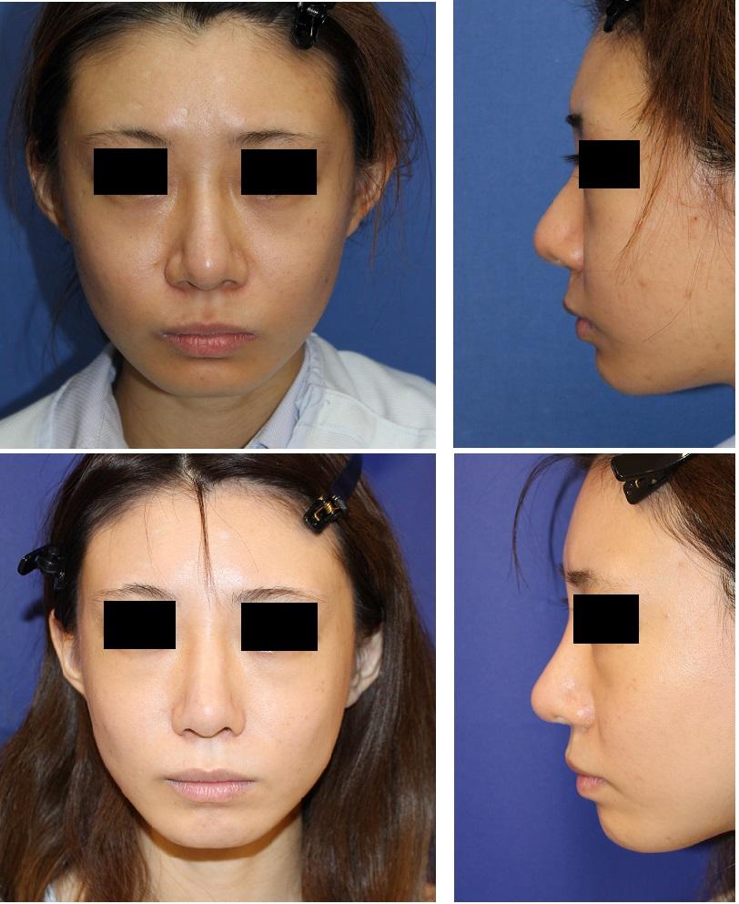 鷲鼻修正術、鼻根縮小術、鼻尖縮小術、小鼻縮小術 術後約3年再診_d0092965_57599.jpg