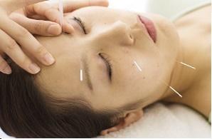 美顔の鍼治療(怪我のお陰で綺麗に)_e0097212_14400866.jpg