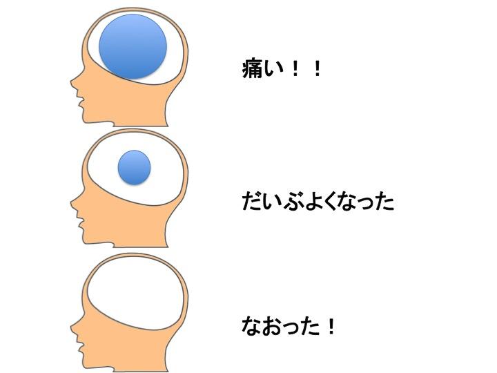 慢性痛の最新研究は脳科学_b0052170_18554556.jpg