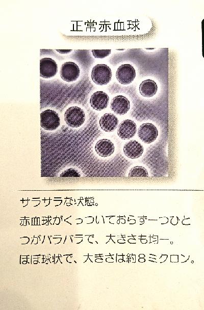 赤血球 血液サラサラです!_b0083801_20400631.png