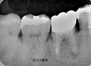 b0196070_16335536.jpg