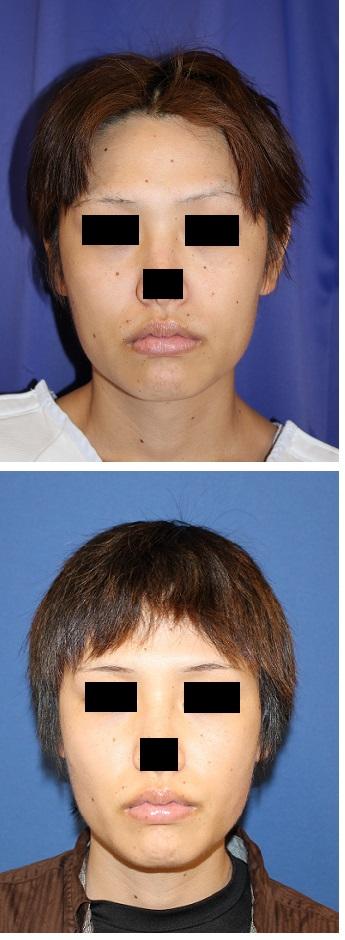 バッカルファット摘出術 、 アキュスカルプレーザー(頬、顎下、ほうれい線)_d0092965_3131453.jpg