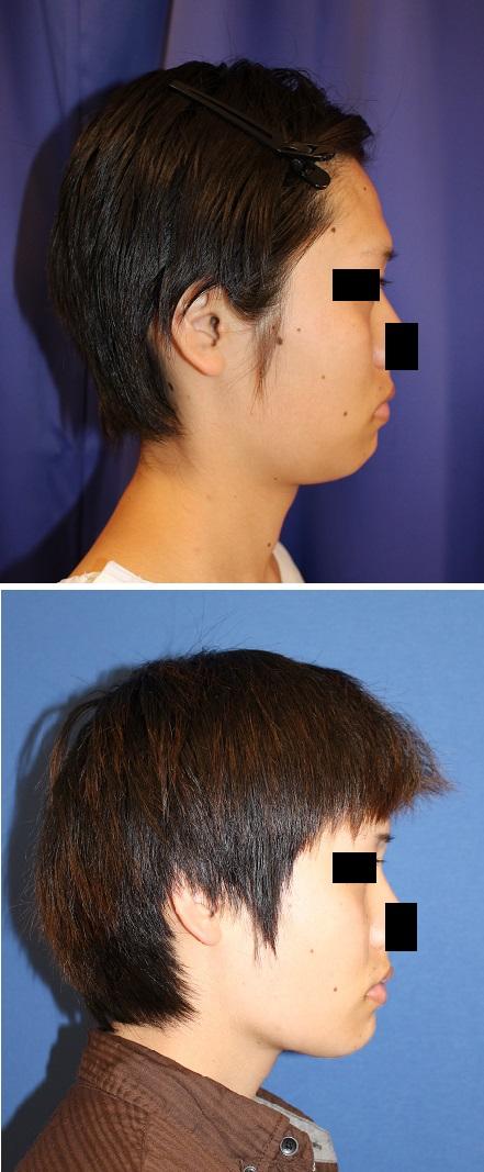 バッカルファット摘出術 、 アキュスカルプレーザー(頬、顎下、ほうれい線)_d0092965_3132359.jpg