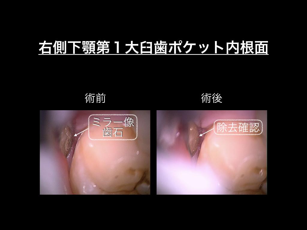 全ての患者は全過程を顕微鏡歯科治療で_e0004468_05015061.jpeg