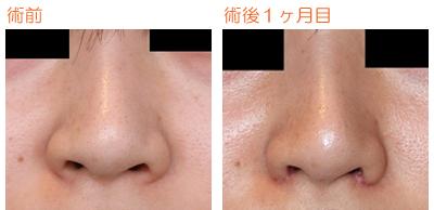 小鼻縮小 術後1ヶ月目_c0193771_11563639.jpg