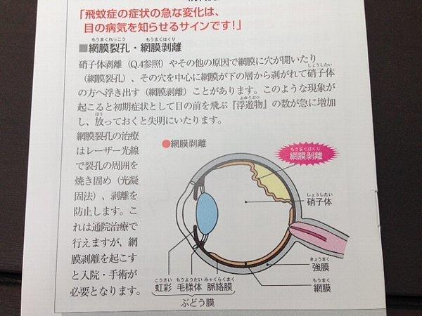 眼科検診 その2 専門医の適正?  _c0204333_19140973.jpg
