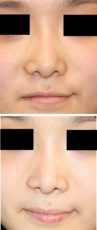 鼻尖レーザー縮小術、 小鼻肉厚減幅術_d0092965_25169.jpg